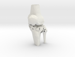 Knee - Proximal Tibia Fracture (SKU 005) in White Strong & Flexible