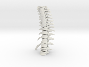Thoracic Spine - Fracture (SKU 019) in White Natural Versatile Plastic