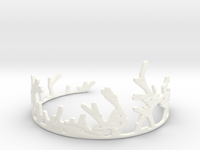 Growing Bracelet v.2 in White Processed Versatile Plastic