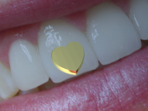 Tooth Art- Heart in 14K Gold