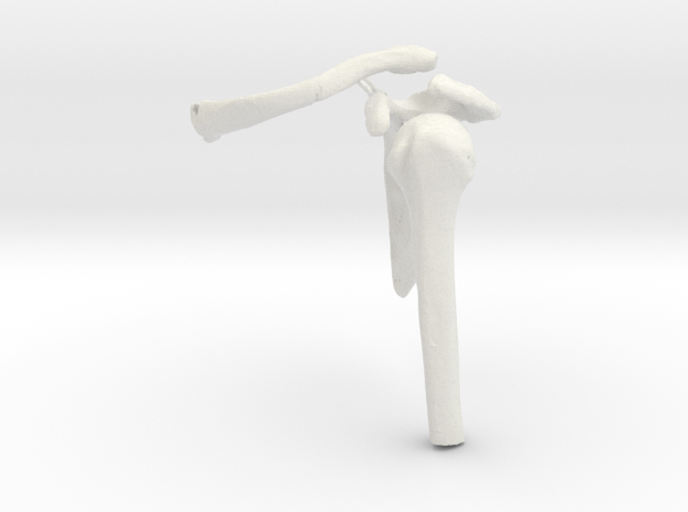 Shoulder Fracture - Scapula and Clavicle Fracture in White Natural Versatile Plastic