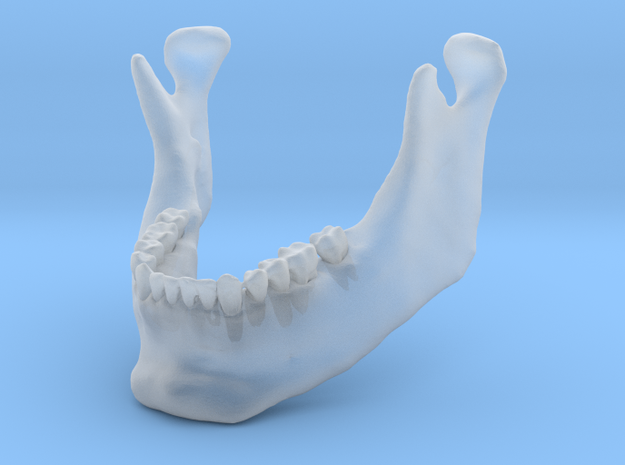 Subject 3b | Mandible (After)
