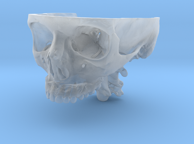 Subject 0.j | Calvarium+Teeth (After) in Smooth Fine Detail Plastic