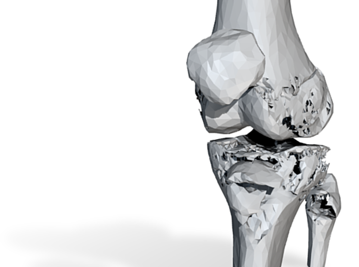Knee - Proximal Tibia Fracture (Tibial Plateau) 3d printed
