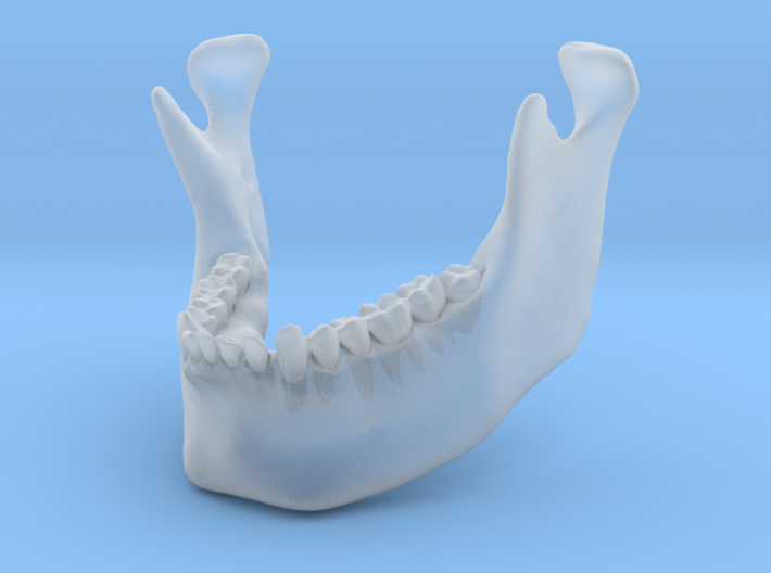 Subject 3a | Mandible (Before) 3d printed