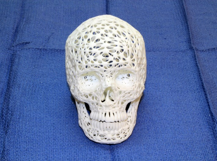 Lace Skull, Full Size 3d printed Photo shows the half-size version