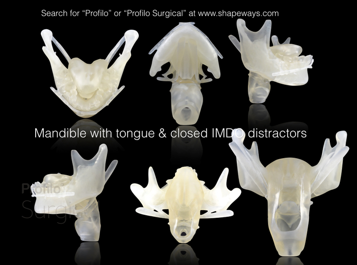 Subject 2d | Mandible + Tongue + Distractors (Befo 3d printed Printed model