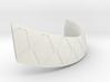 fix strap 3d printed