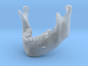 Subject 2a | Mandible (Before IMDO) 3d printed